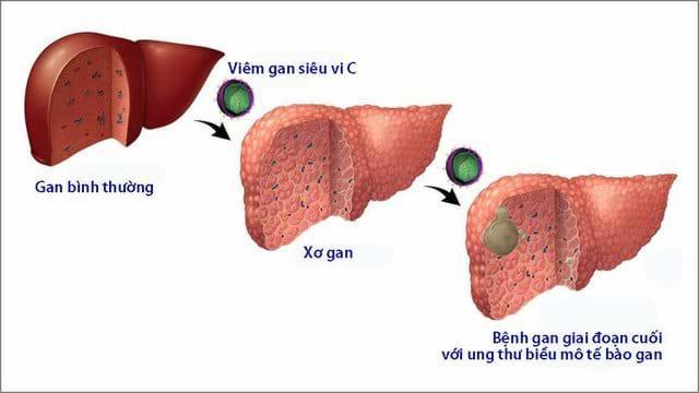 Cách chặn viêm gan C không thành ung thư Ảnh 1