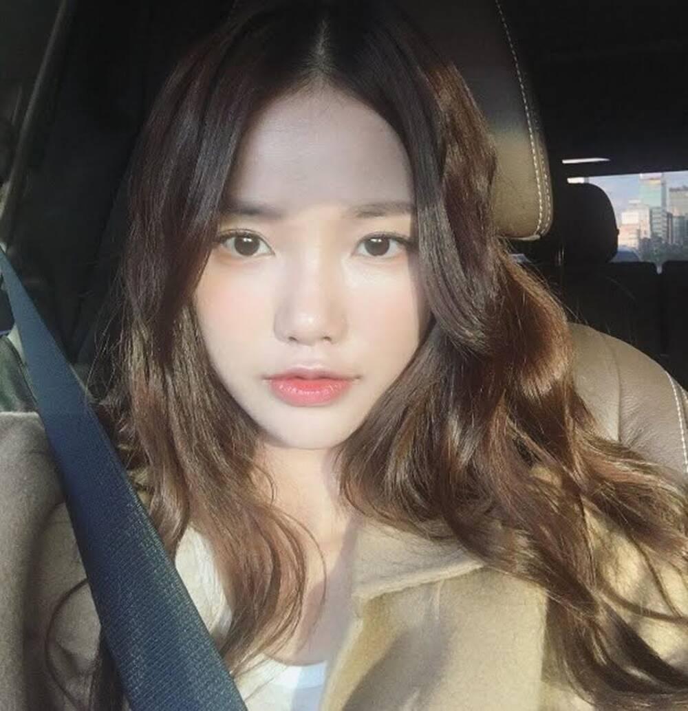 7 nghệ sĩ Hàn thú nhận họ bị hói nghiêm trọng, IU cũng góp mặt Ảnh 16