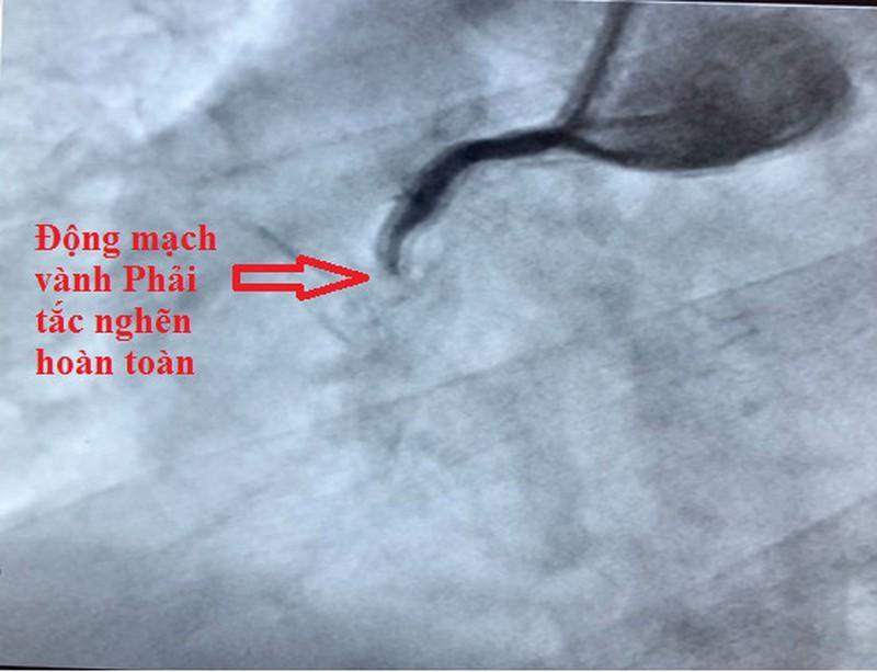 TP.HCM: Hai người bị nhồi máu cơ tim vào sáng sớm Ảnh 3