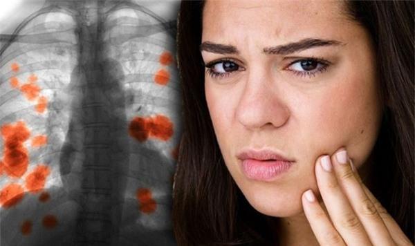 Dấu hiệu trên mặt cảnh báo ung thư phổi nhưng ít người biết Ảnh 1