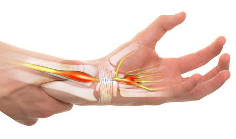 Tê tay rần rần là dấu hiệu của bệnh gì? Ảnh 1