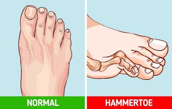 Điều gì xảy ra với cơ thể khi đi giày cao gót mỗi ngày? Ảnh 8