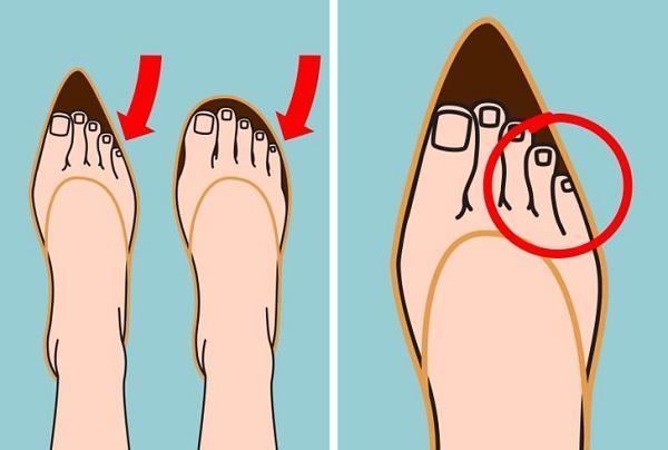Điều gì xảy ra với cơ thể khi đi giày cao gót mỗi ngày? Ảnh 6
