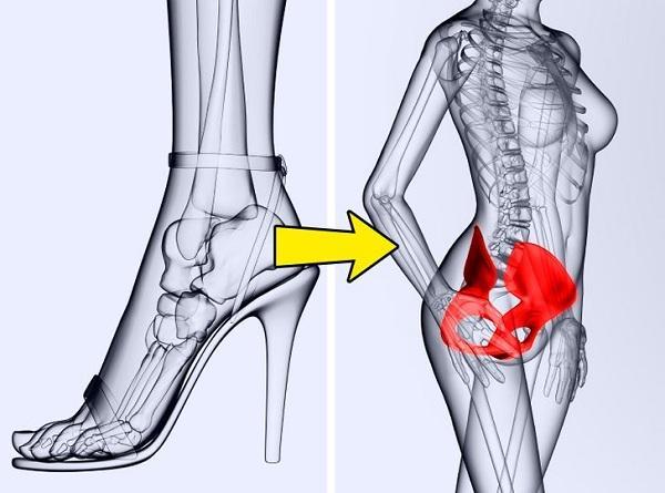 Điều gì xảy ra với cơ thể khi đi giày cao gót mỗi ngày? Ảnh 5