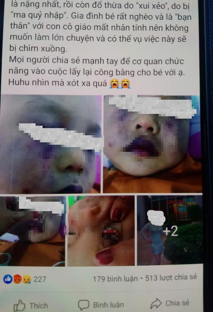 Nghi vấn điểm giữ trẻ không phép bạo hành dã man trẻ 18 tháng tuổi Ảnh 1