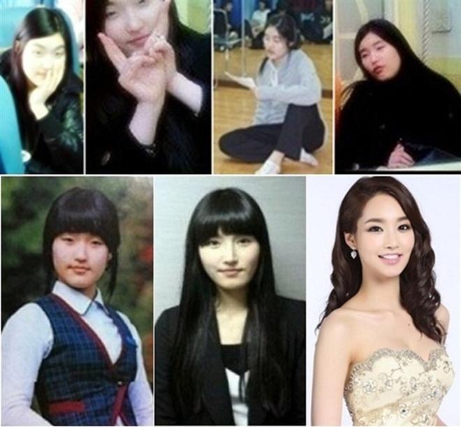 Sự thật bất ngờ về bức ảnh khiến Park Min Young bị đồn thổi 'đập mặt xây lại' Ảnh 6