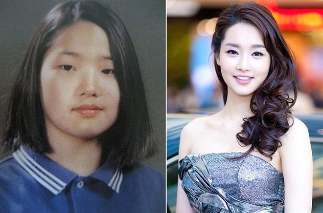 Sự thật bất ngờ về bức ảnh khiến Park Min Young bị đồn thổi 'đập mặt xây lại' Ảnh 5