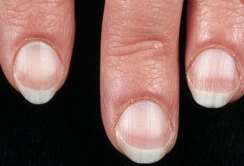 Tình trạng móng tay tiết lộ gì về sức khỏe của bạn Ảnh 1