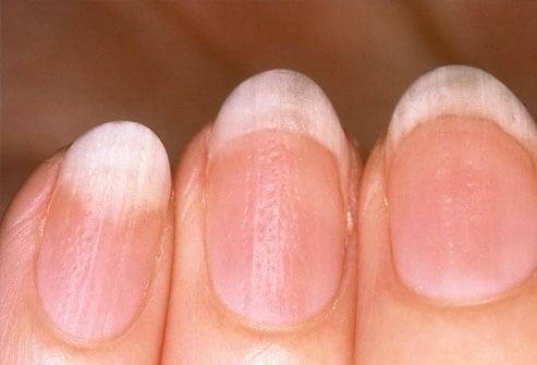 Tình trạng móng tay tiết lộ gì về sức khỏe của bạn Ảnh 5
