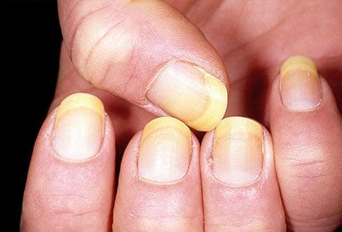 Tình trạng móng tay tiết lộ gì về sức khỏe của bạn Ảnh 3