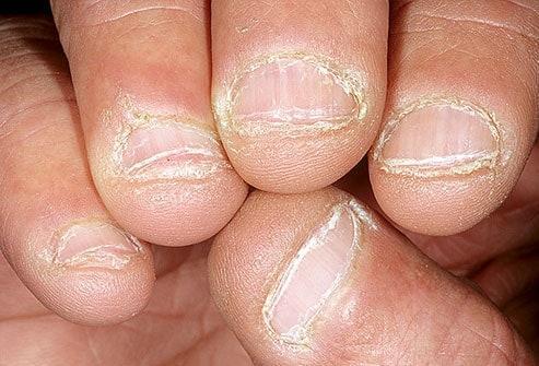 Tình trạng móng tay tiết lộ gì về sức khỏe của bạn Ảnh 9
