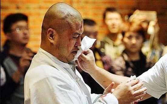 Võ sư Thái Cực tai tiếng Trung Quốc tố bị 6 HLV thể hình đánh nhập viện Ảnh 1