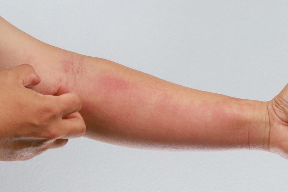 11 triệu chứng và biến chứng mới của bệnh COVID-19 Ảnh 3