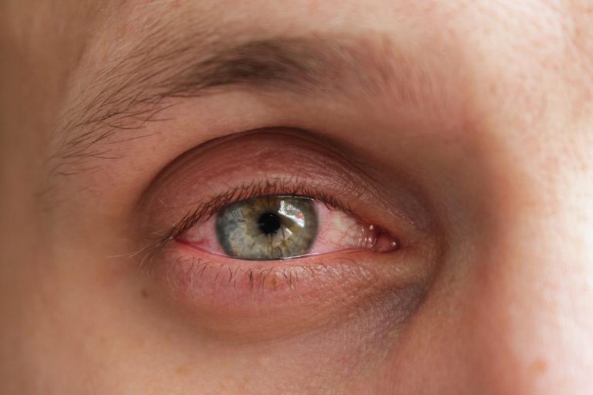 11 triệu chứng và biến chứng mới của bệnh COVID-19 Ảnh 9