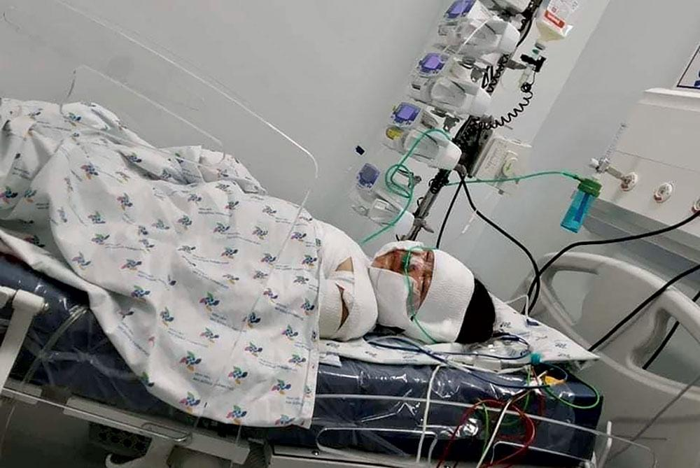 Bé gái bị bỏng nặng cần được giúp đỡ Ảnh 1