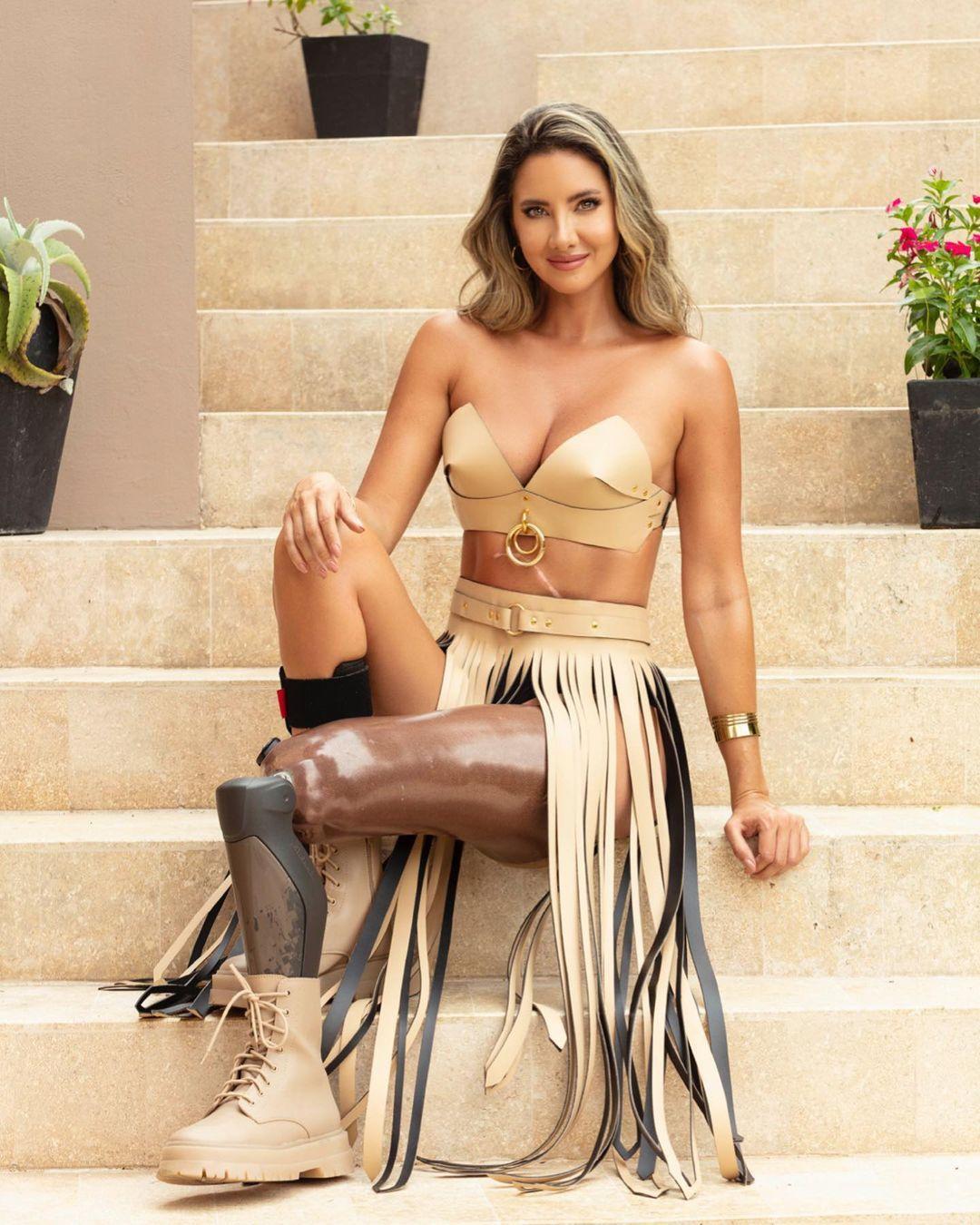 Hoa hậu Colombia sau ca phẫu thuật cưa chân Ảnh 1