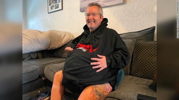 Người đàn ông sở hữu quả thận nặng... 40 kg Ảnh 1