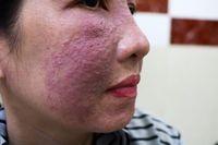 Tham làm trắng da cấp tốc đón Tết, nhiều chị em bị tai biến da mặt