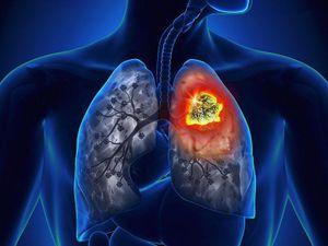 Lần đầu triển khai kỹ thuật giúp người mắc ung thư phổi nhanh phục hồi