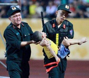 Bác sĩ lên tiếng vụ cảnh sát đưa ngón tay vào miệng trẻ bị động kinh để cấp cứu
