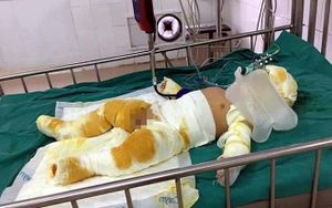 Thương tâm bé trai 7 tháng tuổi cùng cha mẹ bỏng nặng nhập viện cấp cứu do hở bình gas trong lúc đun nấu