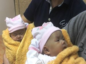 Ngắm vẻ đáng yêu của hai bé sinh đôi dính nhau khi xuất viện