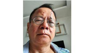 Khởi tố vụ nhóm thanh niên đánh trọng thương một Việt kiều Đức ở quán karaoke
