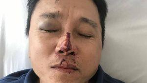 Vụ tài xế bị đánh ở Thừa Thiên Huế: Xe hãng Huệ Thi chạy vượt tuyến 42 km?