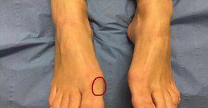 Bàn chân xuất hiện 8 điểm này tuyệt đối không được lơ là vì có thể là dấu hiệu bệnh nguy hiểm