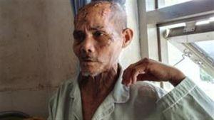 Cụ ông bị đánh dã man: Tạm giam người cháu