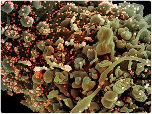 Xác định 2 kháng thể có thể dùng điều chế thuốc trị COVID-19