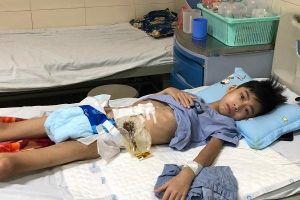 Bị cắt ruột vì ung thư, nam sinh đau khổ không dám đi học