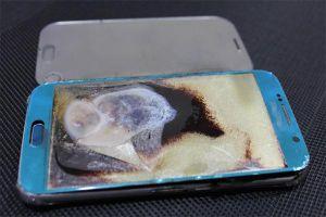 Điện thoại phát nổ khi sạc pin, một thiếu niên bị bỏng toàn thân