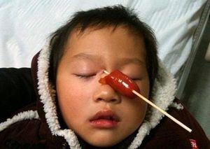 Chấn thương mắt ở trẻ em