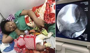 Bệnh viện Đa khoa Quảng Nam nói gì về việc bé trai gãy chân khi sinh mổ?