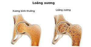Có thể ngăn ngừa sự phân hủy xương do loãng xương