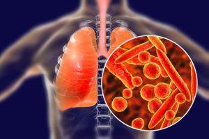 Vi khuẩn lao tồn tại trong không khí bao lâu?