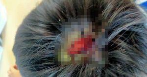 Bé 9 tuổi nghi bị cha bạo hành dã man