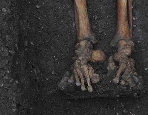 Bí mật phía sau 314 bộ xương vỡ vụn của người Anh trung cổ