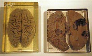 Khám phá những bí mật của bộ não người