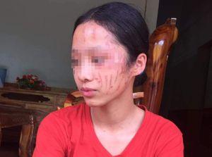 Bênh em gái, nữ sinh lớp 8 bị cào sưng mặt