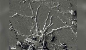 Phát hiện tế bào não còn nguyên vẹn sau 2.000 năm ở Italy