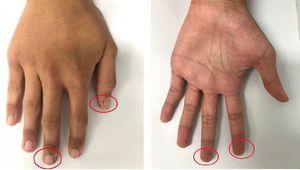 Xuất hiện các sắc tố lạ trên cơ thể, nam thanh niên được chuẩn đoán bị hoại tử ruột non