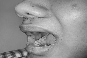Thanh niên mọc tàn nhang quanh miệng, không ngờ mắc bệnh gây hoại tử ruột