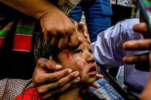 Các quan chức Liên Hợp Quốc kêu gọi ngăn chặn 'bạo lực lan rộng' đối với trẻ em ở Myanmar