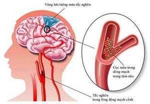 Đột quỵ vì tự dừng thuốc chống đông máu
