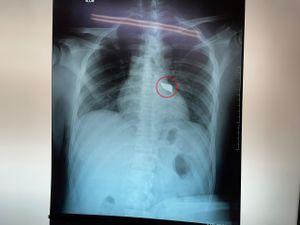 Phẫu thuật thành công cho bệnh nhân bị dao đâm xuyên lưng
