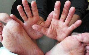 82 trẻ ở Hà Nội mắc bệnh tay chân miệng