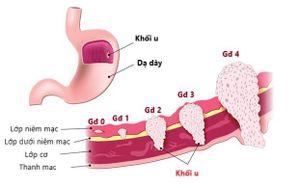 Áp dụng phương pháp đa mô thức trong điều trị ung thư dạ dày