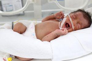 Bé gái bị bỏ rơi tại bệnh viện trong tình trạng nguy kịch vừa được xuất viện